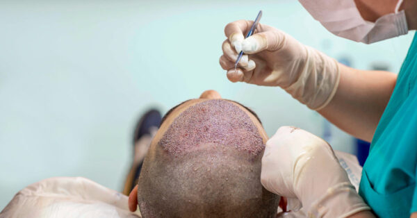How to choose best hair replacement treatment in Delhi