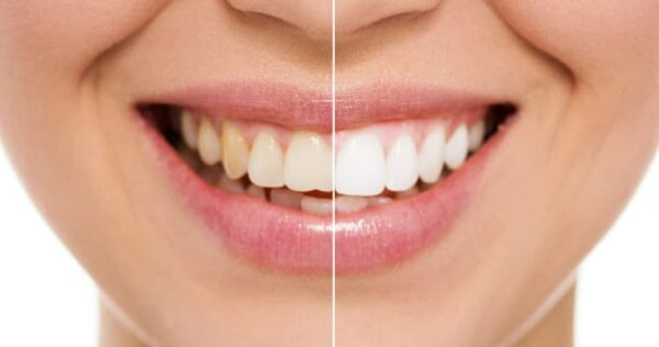 Keep Your Teeth Healthy With Crest Whitening Strips Online in COVID-19 Pandemic
