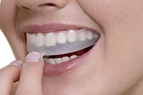How To Do Teeth Whitening For The First Time?