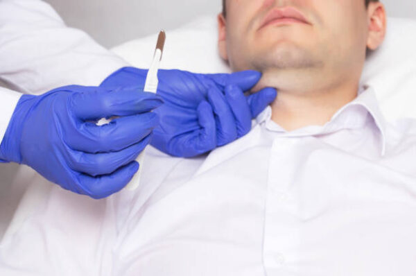 Kybella or Coolsculpting: Which is best for double chin?